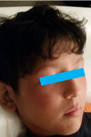 Boy with no facial eczema after eight weeks of treatment with blue box over eyes for privacy